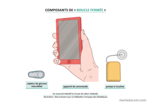 Diabete-Pancreas-Artificiel-03-Marie-Ducom-2019
